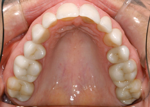 cerec after shot showing nromal looking teeth